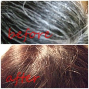 befor-after